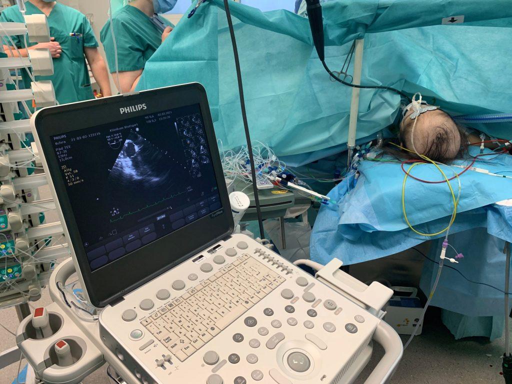 Ultraschallgerät CX 50
